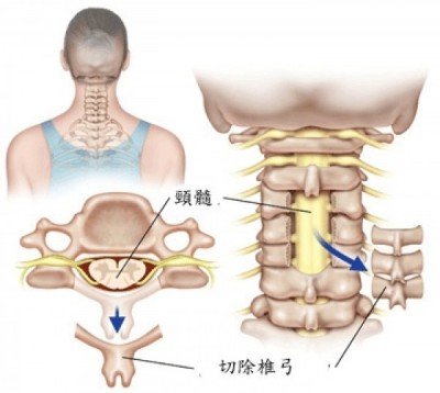 Lumbar scoliosis in older adults
