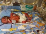 孕婦罹癌拒化療 捱3週產健康兒