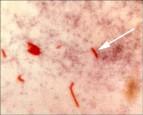 結核菌變毒了 打卡介苗恐失效