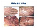藥害救濟個案 皮膚過敏最多