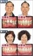 〈從「齒」健康展笑顏〉 6旬夫妻做矯正 抗牙周病
