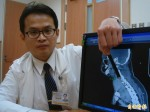罕見甲狀腺結節大如絲瓜 患者氣喘難呼吸