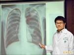 胸痛當心臟病 「自發性氣胸」急住院