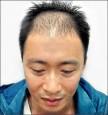 植髮男性 最愛金城武的型