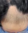 拔毛癖壓力大 自己拔自己的毛