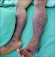 兩腿滿佈紫斑 病毒感染誘發