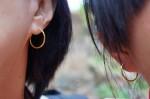 蟹足腫體質 穿耳洞竟長6顆肉瘤