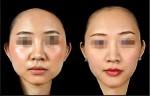 3D列印助整形 26歲女變鵝蛋臉