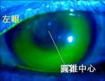 退化性「圓錐角膜」 可戴特殊隱形眼鏡矯正