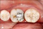 「假牙填充物」材質不同 咬合像觸電