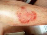 皮癢亂塗藥 黴菌抗藥更棘手