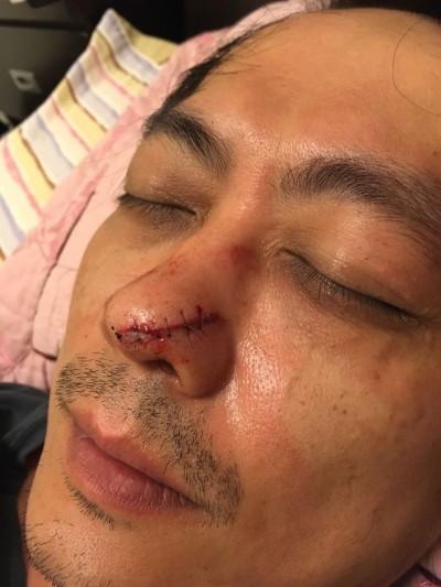 董事長團員被釘鞋破相   鼻翼撕裂傷