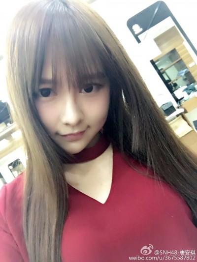 SNH48唐安琪遭火吻80%灼傷 近況曝光看了好揪心