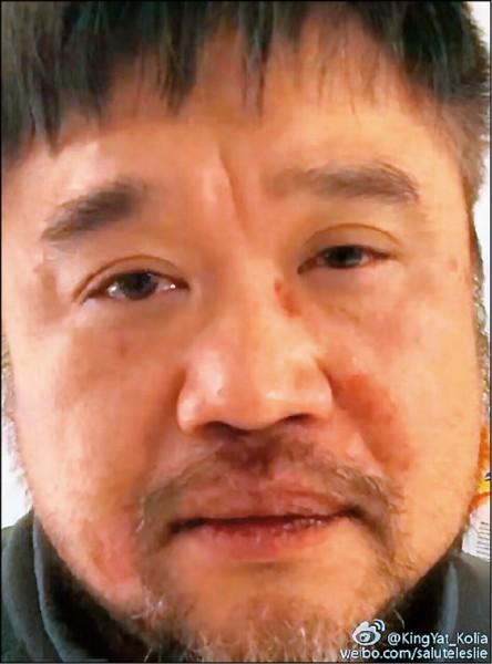 中國片商二打一 港知名剪接師慘遭痛毆
