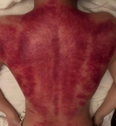 阿嬌半夜曬驚悚照 美背一片鮮紅像被剝皮