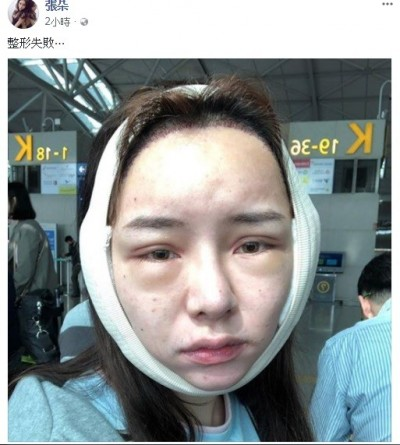 Kiwebaby赴韓整形失敗 臉嚴重變形遭海關攔截