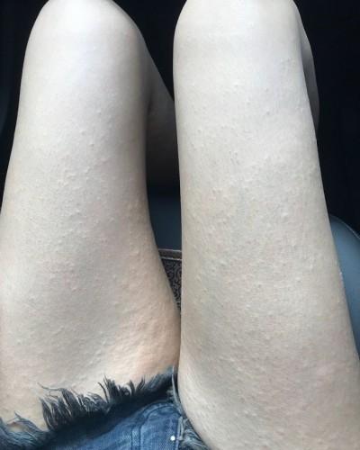 楊謹華「從頭癢到腳」   滿身疹子超驚人