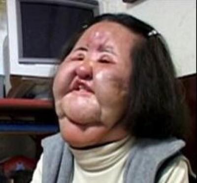 沙拉油注入臉部慘變形 「電風扇大嬸」離世享年57歲