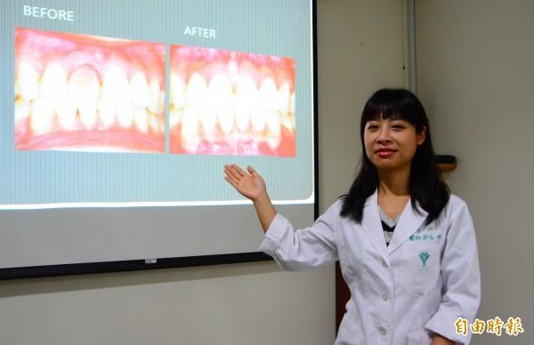 奇美醫學中心以齒內漂白的方式,讓有困擾的病友重拾自信。(記者吳俊鋒攝)