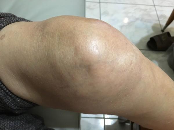 胡母膝蓋因痛風導致嚴重腫脹。(部立豐原醫院提供)