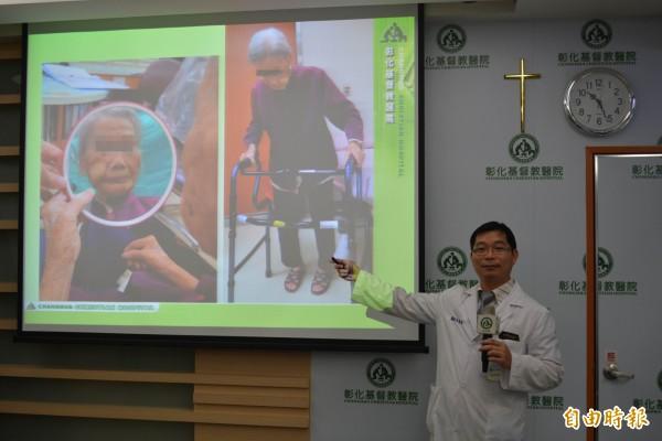 彰基整形重建外科醫師周惠能為百歲阿嬤臉頰腫瘤局部麻醉後切除並移植,讓阿嬤很滿意。(記者湯世名攝)