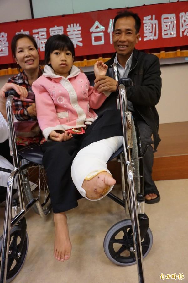 象腿女孩阮氏巒去年6月在爸爸陪同下二度來台就醫手術。(資料照,記者蔡淑媛攝)