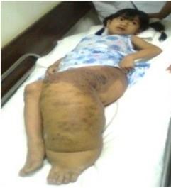 象腿女孩阮氏巒因多發性畸形淋巴管瘤,左腿腫脹如象腿,4年前來台手術。(資料照,記者蔡淑媛翻攝)