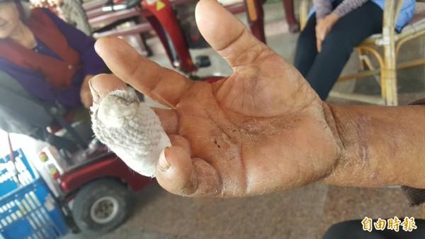 古朝選右手手指遭狗咬,嚴重斷骨。(記者張軒哲攝)