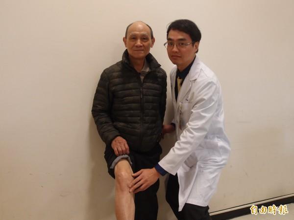 黃佩韋採取「脛骨截骨矯正術」為黃伯伯治療,讓他保留膝關節,且行動自如。(記者翁聿煌攝)