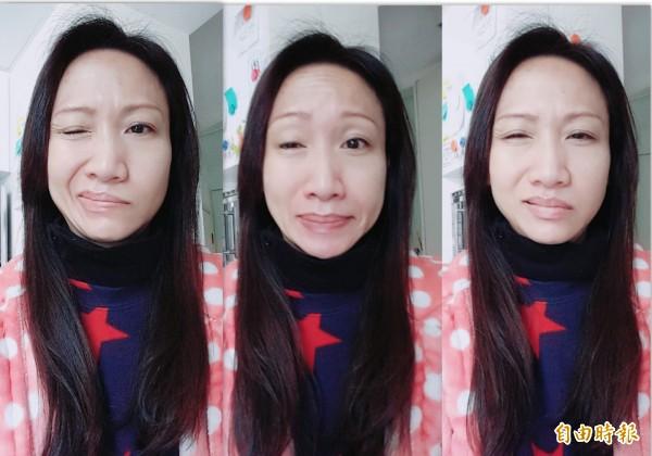 賈婦罹患半臉痙攣,左臉抽蓄嘴歪眼斜。 (記者蔡淑媛攝)