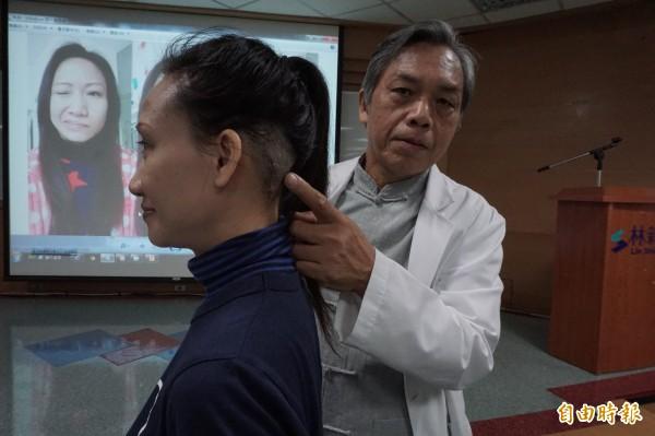 醫師許達夫為賈婦從耳後做腦神經血管減壓手術。(記者蔡淑媛攝)
