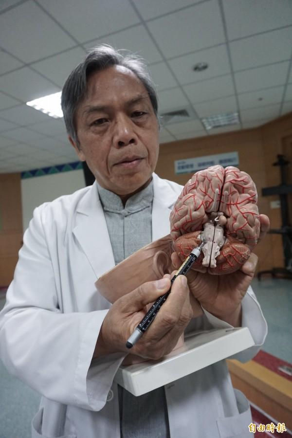 醫師許達夫指出賈婦位於腦幹根部的顏面神經被血管壓迫,造成半臉痙攣。(記者蔡淑媛攝)