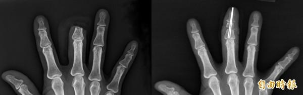 古婦右手中指被狗咬斷(左),經手術9小時後順利接回(右)。(記者歐素美攝)