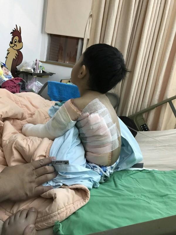 民眾勿信偏方,幫遭燙傷的孩子脫掉衣服還灑麵粉「降溫」,導致傷口難以散熱,傷者日後更容易留疤。(陽光基金會提供)