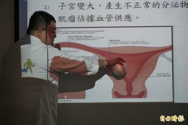 沈煌彬指子宮肌瘤可能會壓迫子宮、侵占子宮血流營養、使子宮收縮等造成不孕,(記者蔡淑媛攝)