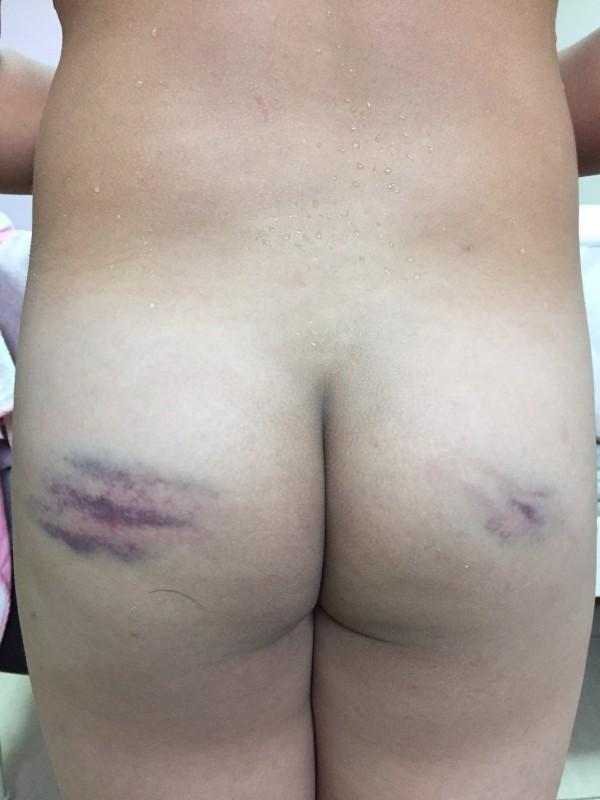 陳生被許姓導師體罰,用棍子打到臀部淤血。(家長提供)