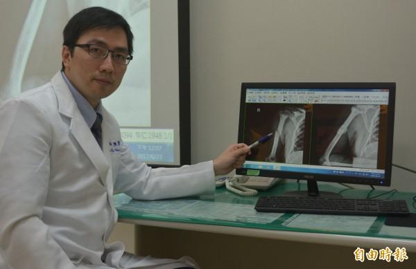 國軍台中總醫院主治醫師陳彥斌研判非單純骨折,經檢查確診是攝護腺癌末期,經藥物治療後骨折自然痊癒。