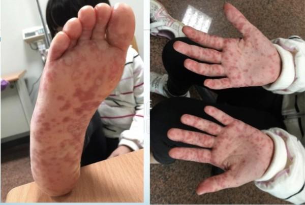 腸病毒在皮膚表氣很多樣,紅疹越多,不代表病情越嚴重,也與重症機率無關。(記者蔡淑媛翻攝)