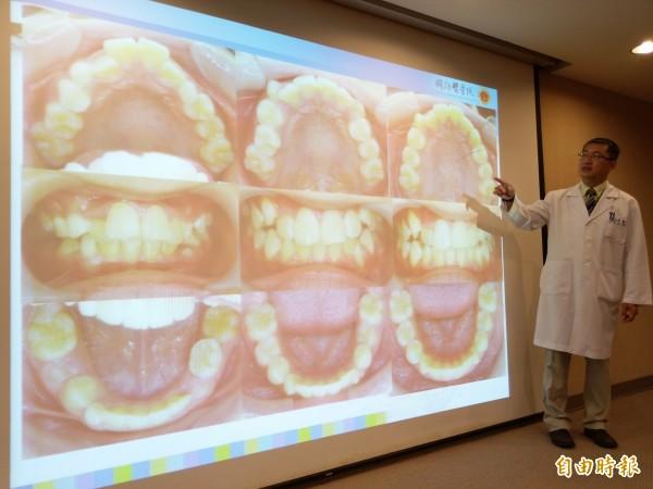 李忠興建議,兒童牙齒矯正最好從七歲起,避免日後還要二度治療的風險。(記者吳亮儀攝)