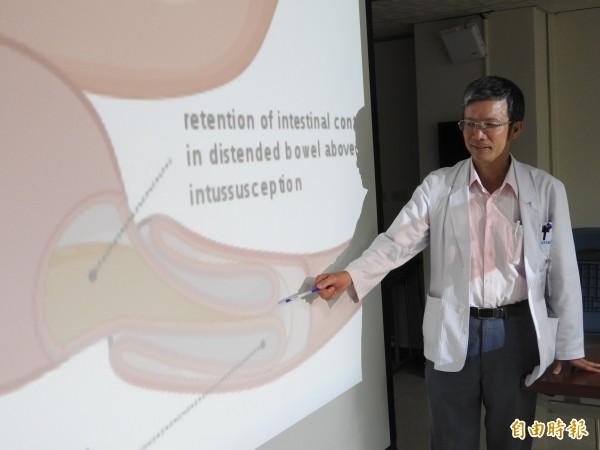 李世超醫師指患者的腸套疊是「小腸包小腸」。(記者方志賢攝)