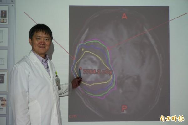 醫師游惟強指廖阿公切除神經膠母細胞瘤後做大範圍的標準放療,更在原腫瘤位置加強放射劑量(黃色區)徹底清除瘤細胞,提高存活率。(記者蔡淑媛攝)
