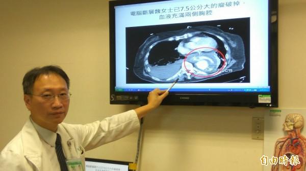 台中慈濟醫院心臟外科主任余榮敏手指紅圈處,即為魏婦主動脈瘤破裂。(記者歐素美攝)