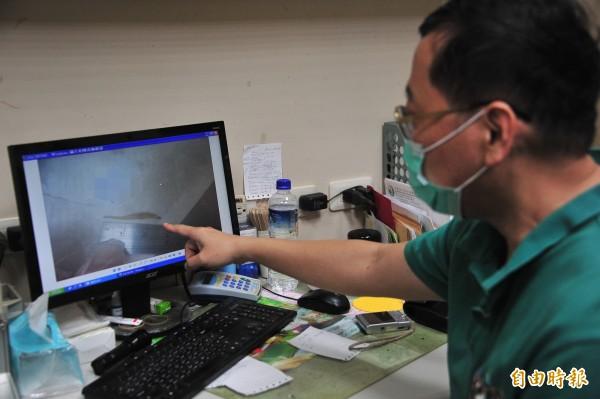 恆春腸胃科醫師李立瑋對魚刺卡肛門直呼罕見。(記者蔡宗憲攝)