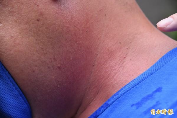 戴姓員工脖子及臉上長期出現紅疹。(記者葉永騫攝)