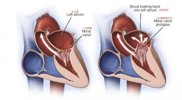 二尖瓣正常閉合,血液從左心房到左心室,再到主動脈(左圖),但二尖瓣閉鎖不全會造成左心室血液逆流到左心房(右圖)。(記者蔡淑媛翻攝)