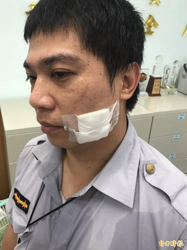 秀朗派出所林姓員警臉部遭毆傷。(記者陳薏云攝)