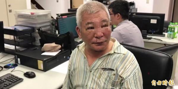 林姓司機遭瓦男毆打,鼻青臉腫。(記者陳薏云攝)
