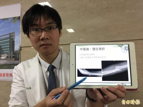 醫師林聖傑指出,這名52歲中風患者跌倒後造成手腕、手肘粉碎性骨折。(記者蔡淑媛攝)