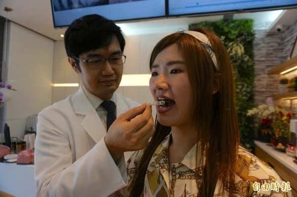 牙醫師李宜昇為鄭姓女大生進行隱形牙套矯正牙齒。(記者蔡淑媛攝)