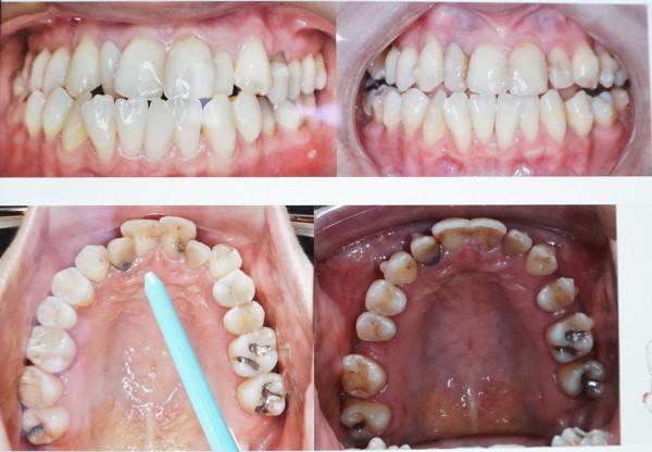 鄭姓女大生中重度的齒列擁擠,清潔不易,多數牙齒有蛀牙、牙周病等問題(左圖),現在矯正半年改善(右圖)。(記者蔡淑媛翻攝)